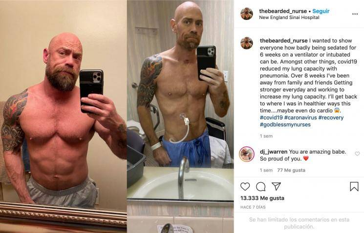 Coronavirus survivor's body transformation pics leave everyone shocked