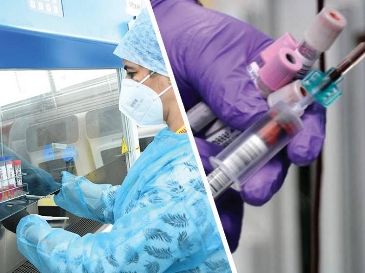 Australian researchers invent 20-minute COVID-19 blood test